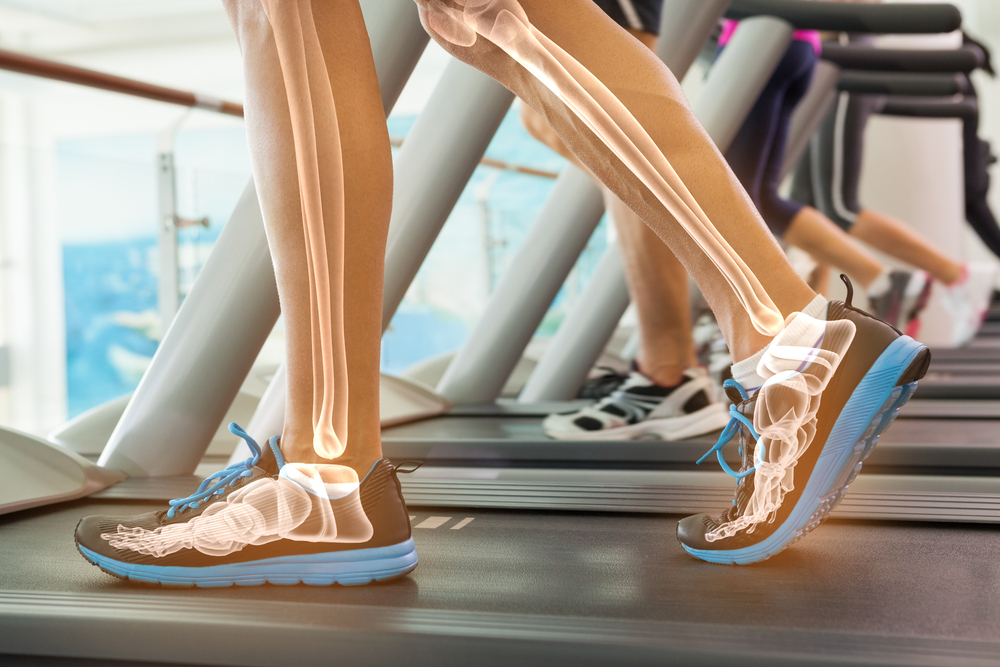 foot and ankle pain person on treadmill